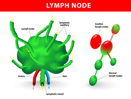 lymph node, lymph gland  Schematic diagram of lymph node showing the flow of lymph  Swollen lymph nodes and Normal lymph nodes  Stock Vector - 19574543