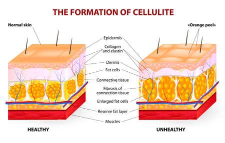 La formación de la celulitis La celulitis se produce en la mayoría de las mujeres y rara vez en hombres Diagrama vectorial Ilustración de vector