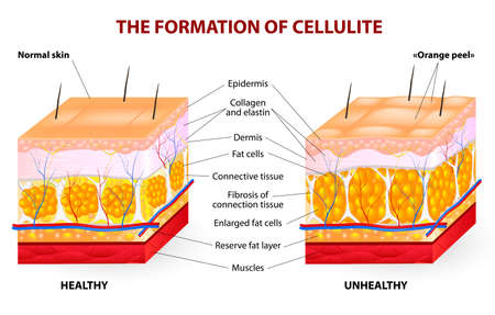 cellulite: The formation of cellulite   Cellulite occurs in most females and rarely in males  Vector diagram