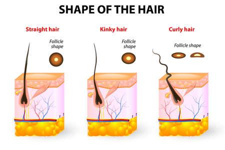 Arten von Haarquerschnitt der verschiedenen Haarstruktur Follikel Form bestimmt Haarbeschaffenheit Gerade, wellig, lockig, verworren und Spiral Haar Standard-Bild - 23684901