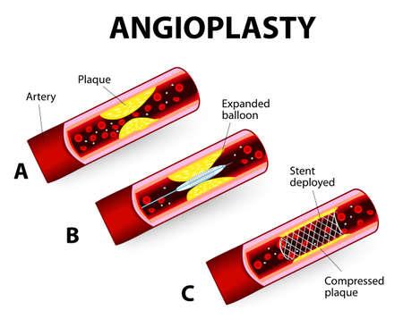 Angioplastie en Stent Implantatie Stock Illustratie