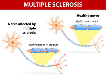La esclerosis múltiple es un mal funcionamiento del sistema inmune específica que causa daño a la salud de los nervios, lo que altera el flujo de las señales nerviosas.