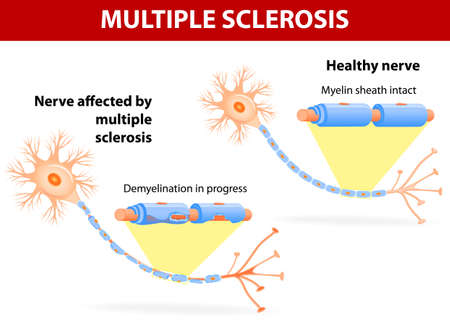 disrupting: Multiple sclerosis is a specific immune system malfunction which causes damage to healthy nerves, disrupting the flow of nerve signals.