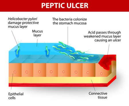 infektion: Die Forschung zeigt, dass die meisten Geschw�re von Magen und Zw�lffingerdarm Geschw�re entwickeln, weil der Infektion mit Helicobacter pylori. Bakterien schw�cht die Schutzschleimschicht des Magens. Dies erm�glicht S�ure auf den Bauteilen und verletzen die zugrunde liegenden Magenzellen. Illustration