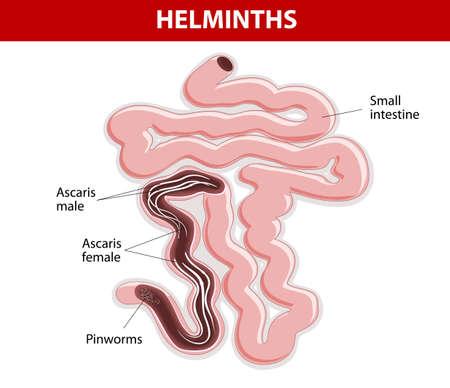 small intestine: Los helmintos en el intestino delgado. Ascaris y oxiuros. Ascaris lumbricoides Vectores