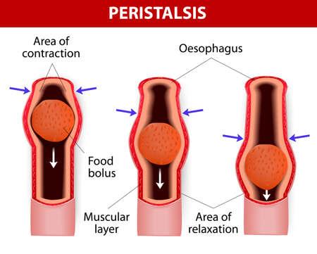 esofago: El peristaltismo, o contracciones en forma de onda de los m�sculos en las paredes exteriores del tracto digestivo, lleva el bolo por el es�fago. El peristaltismo no s�lo se produce en el es�fago. Se contin�a a trav�s del est�mago, el intestino delgado y el intestino grueso.