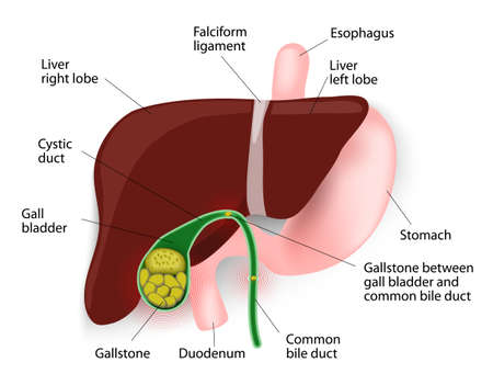 cystic duct: Gallstones develop because cholesterol and pigments in bile sometimes form hard particles. Cholesterol stones and pigment stones