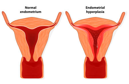 endometrium: Endometrial hyperplasia is an overgrowth of tissue in the endometrium uterus   The uterine lining becomes too thick which results in abnormal bleeding  Illustration