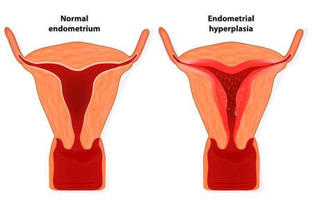 La hiperplasia endometrial es un crecimiento excesivo de tejido en el útero endometrio El revestimiento del útero se espesa demasiado lo que resulta en el sangrado anormal Foto de archivo - 24524270
