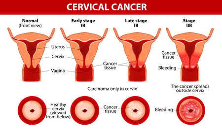 ovarian: Cervical Cancer  Carcinoma of Cervix  Malignant neoplasm arising from cells in the cervix uteri  Vaginal bleeding  Vector diagram