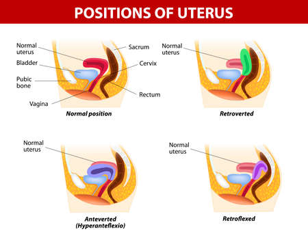 diagram for variants of uterine position  Normal uterus rests on the superior surface of the empty bladder  Normal Uterus Positions  Anteflexed and Anteverted  Abnormal Uterus Positions  Retroflexed and Retroverted Illustration
