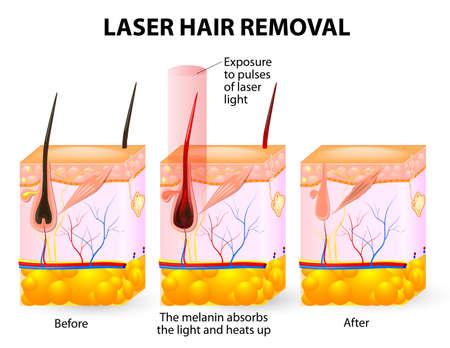 레이저는 손상없이 피부를 관통 가시광을 방출 일러스트