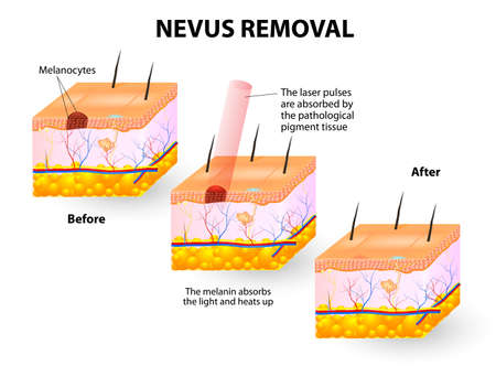 melanoma: Moles spots can be removed with lasers illustration Illustration