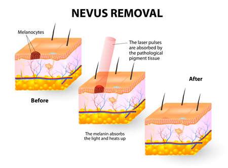usunięta: Plamy mola można usunąć z laserami ilustracji Ilustracja