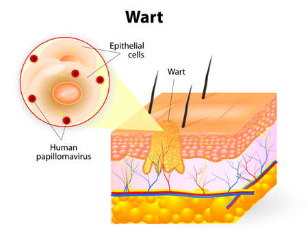 lesions: Wart anatomy Illustration