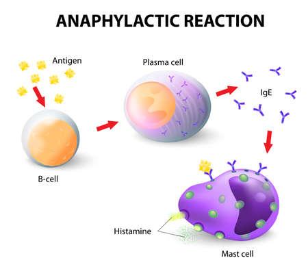 Alergia y anafilaxis. Reacción anafiláctica como ocurre en los mastocitos y basófilos. Los trastornos alérgicos y autoinmunes son típicamente reacciones de hipersensibilidad Foto de archivo - 27277872