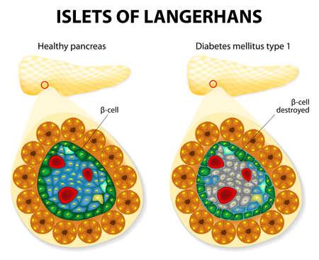 ランゲルハンス島と糖尿病の mellitus のタイプ 1