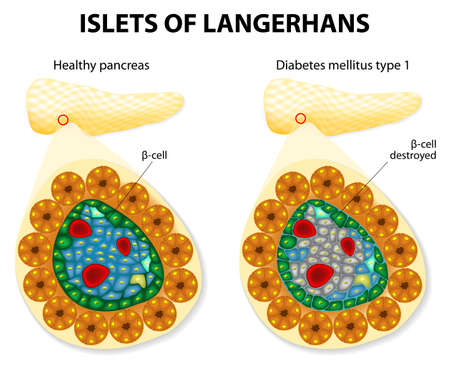 glucose:  islets of Langerhans and diabetes mellitus type 1