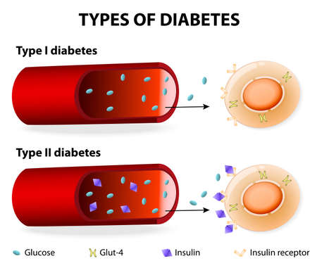 Types of Diabetes. Type 1 and Type 2 Diabetes Mellitus. Insulin-Dependent Diabetes Mellitus and Non Insulin-Dependent Diabetes Mellitus. Insulin resistance and insufficient insulin production. Vector
