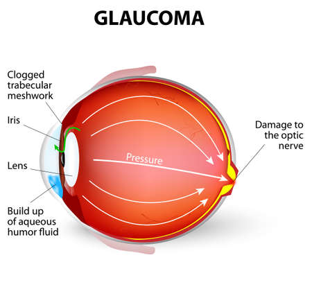 Glaucoma is an eye disease and a leading cause of blindness. The optic nerve is injured. The intra-ocular pressure is increased Illustration