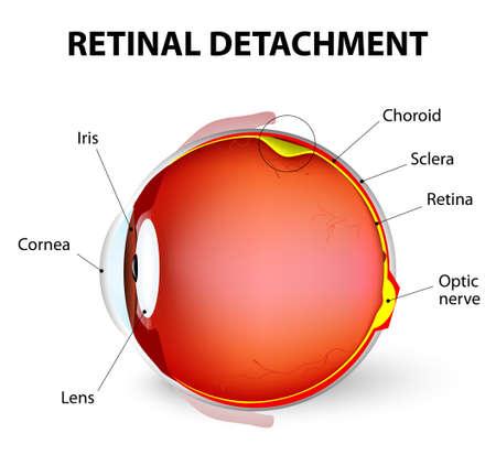 망막 분리는 시신경을 포함하는 부분이 통상의 위치로부터 제거 될 수있는 안구 질환 일러스트