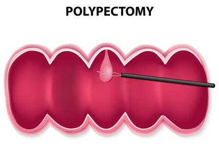 poliepverwijdering. Polypectomie wordt uitgevoerd door het passeren van een draadlus door de colonoscoop en vang de voet van de poliep, dan opgehaald.