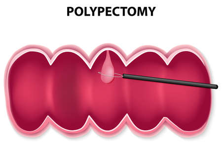 polyp removal. Polypectomy is performed by passing a wire loop through the colonoscope and snaring the base of the polyp, then retrieved. Vector