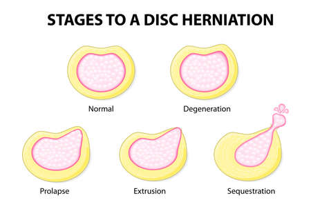 hernia: stages to a disc herniation  Normal, Degeneration, Prolapse, Extrusion, Sequestration