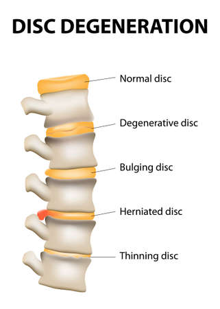 herniated: Disc degeneration it