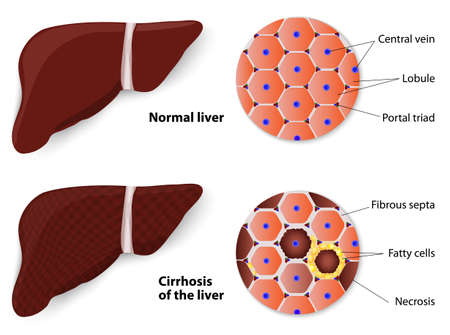 liver cells: Cirrhosis of the liver and Normal liver  Structure of the liver  vector diagram