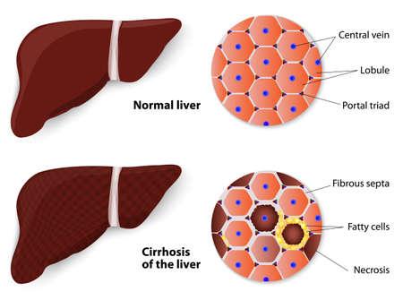 sistema digestivo: La cirrosis del hígado y Estructura del hígado normal del diagrama vectorial de hígado