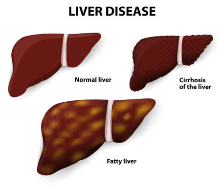 liver cirrhosis: Liver Disease  Cirrhosis of the liver, Fatty liver and Normal liver