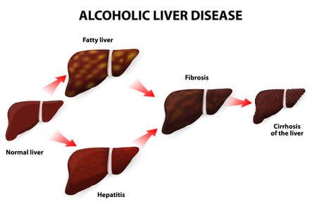 알코올성 간 질환 지방간, 섬유증, 간염, 간 벡터 일러스트 레이 션 Cirrhosisof 알코올의 모든 종류의 간 손상을 일으킬 수 있습니다