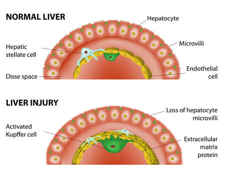 liver cirrhosis: Changes in the hepatic associated with hepatic fibrosis  Normal liver and liver injury