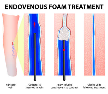 injected: Varicose Veins. Endovenous foam Treatment. When injected inside a vein, the micro foam displaces the blood creating better contact with the vein wall. Sclerosant seals off the varicose veins.