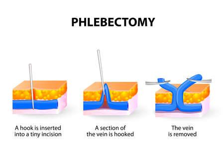 Phlebectomy은 정맥류의 클러스터를 제거하는 데 도움이됩니다. 혈관 경화 요법 너무 큰 경우, 이들은 작은 절개를 통해 제거 될 수있다. 의사는 병든 혈관