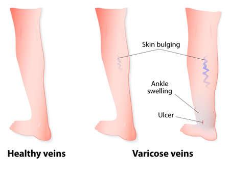 Las venas varicosas son venas agrandadas y retorcidas en color azul vinculado a válvulas defectuosas. En algunos de los casos, las venas pueden llegar a romperse o úlceras pueden formar. Diagrama vectorial