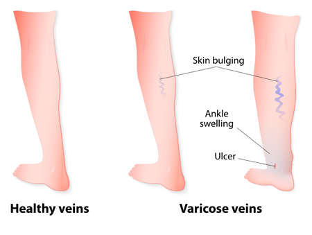 legs: Varicose veins are twisted and enlarged veins blue in color linked to faulty valves. In some of the cases, the veins may go on to rupture or ulcers may form. Vector diagram Illustration