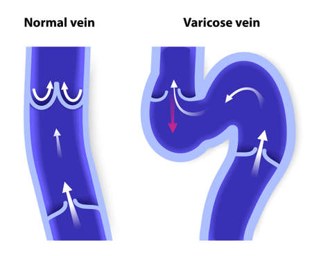 varicose: healthy vein and Varicose vein. human veins. Vector diagram Illustration