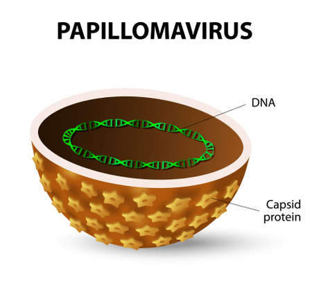 HPV is the cause of cervical cancer in women, warts, and cancers of various organs. Human papilloma virus Vector