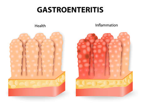 unrelated: Gastroenteritis or infectious diarrhea. Gastroenteritis is an intestinal infection that causes vomiting cramping and diarrhea.