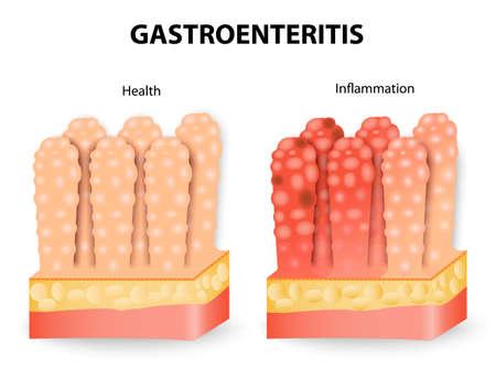infectious: La gastroenteritis o diarrea infecciosa. La gastroenteritis es una infecci�n intestinal que causa v�mitos calambres y diarrea.