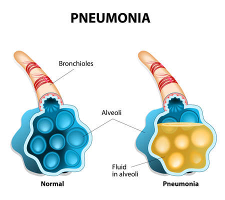fluids: Pneumonia is a inflammatory condition of the lung. It is caused by infection with viruses, bacteria, parasites or fungi. The disease is characterized by the inflammation of the alveoli. Alveoli are filled with fluids. Illustration