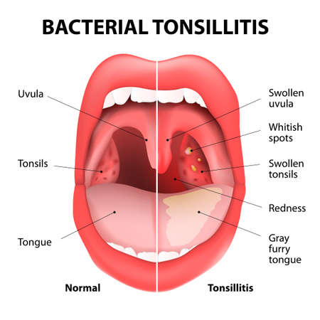 Tonsillitis bacterial. Angina, pharyngitis and tonsillitis. Infection of tonsils caused by virus or bacteria. Recurring and persistent infection of tonsils. Vector