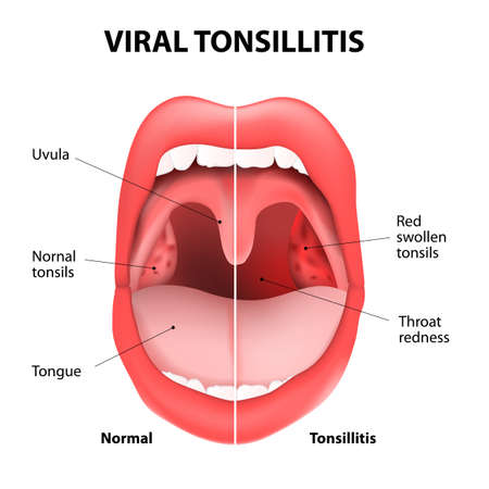 runny: viral tonsillitis or upper respiratory tract infection. URI or URTI.  Illustration