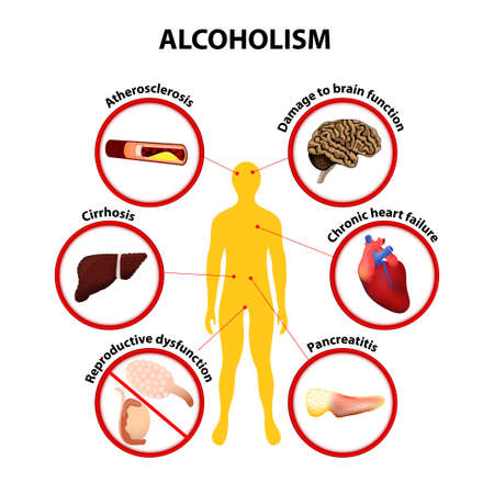 Alcoholism infographic Vector