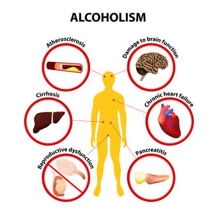 Alkoholismus infographic Ilustrace