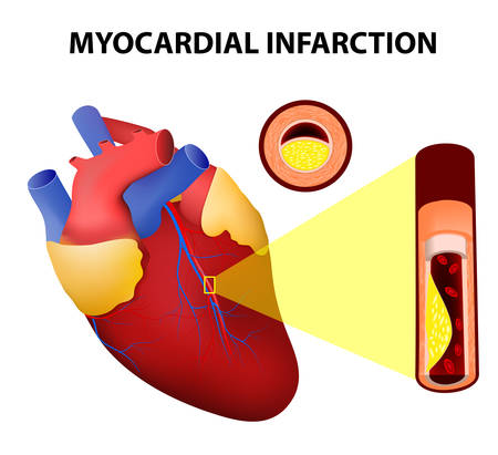 Myocardial infarction or Heart Attack Vectores