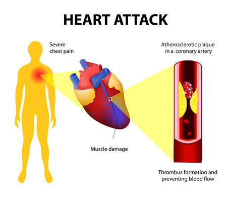 heart pain: Anatomy of a heart attack. Diagram of a myocardial infarction. Atherosclerotic plaque in a coronary artery. Thrombus  totally occluding the artery and preventing blood. Illustration