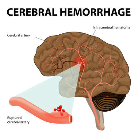 Cerebral hemorrhage or intracerebral hemorrhage. Rupture of a cerebral artery it results in the destruction of nerve cells as well as the formation of a hematoma.  Illustration